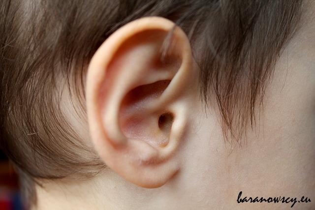 U obu naszych synów reakcje alergiczne często objawiają się zapaleniem ucha.